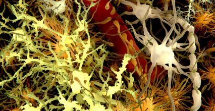 Can Alzheimer's be disease, also transmitted to other people?