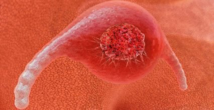 Cancer Test now with one hundred percent detection rate