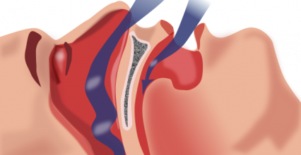 Sleep apnea creates gaps in life memories: study