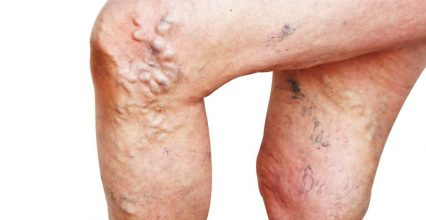 To varicose veins research: Laser treatments have alarmingly high recidivism rate!