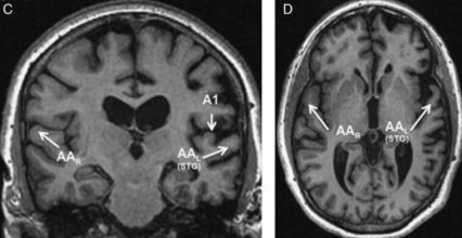 Brain region discovered that only processes spoken, not written words