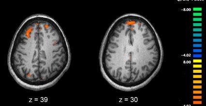 A new model to trial preventative treatments for schizophrenia