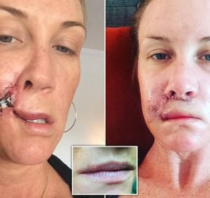 Estate agent, 40, is left with a deformed lip after years of tanning
