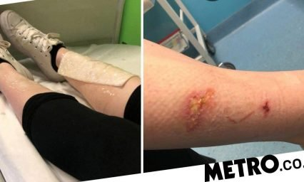 Warning to be careful with nail glue after product burned through girl's pyjamas