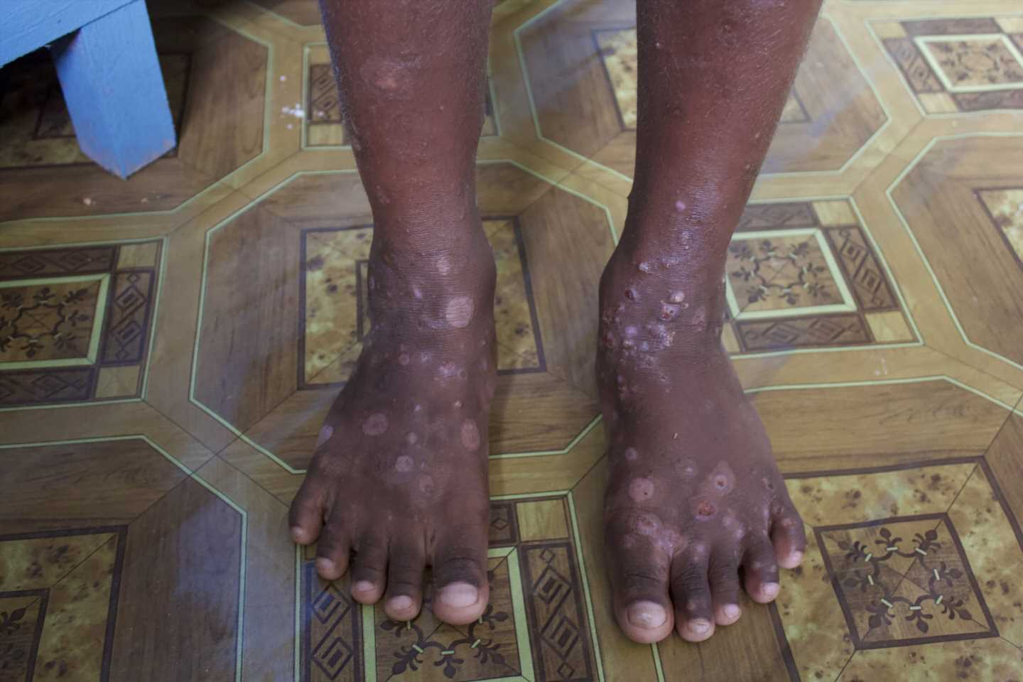 International experts call for action for world's 450 million scabies sufferers