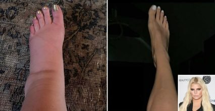 Jessica Simpson Gives a Post-Pregnancy Update on Her Once-Swollen Feet: 'I Spy … My Ankles!'