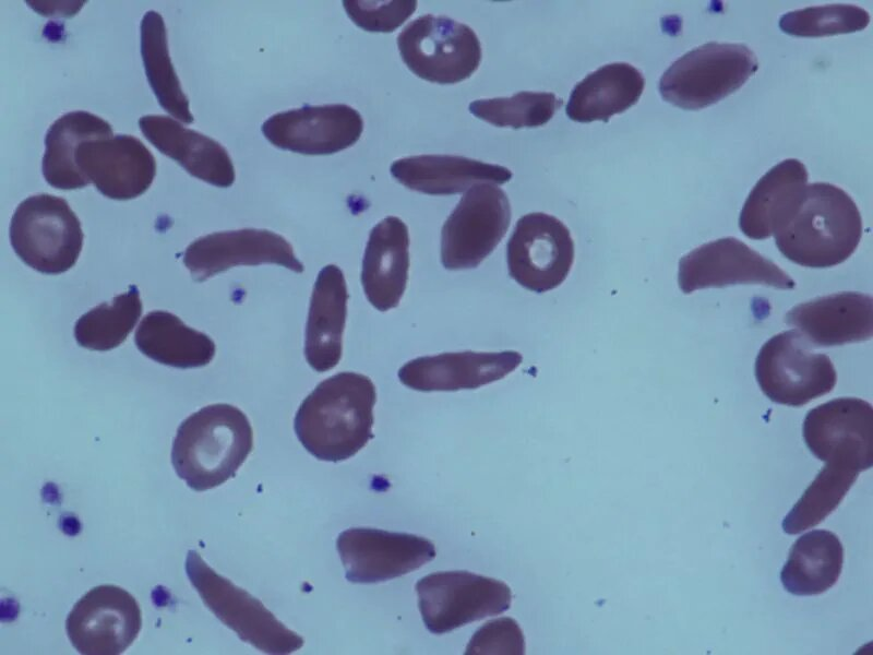 Voxelotor improves hemoglobin levels in sickle cell disease