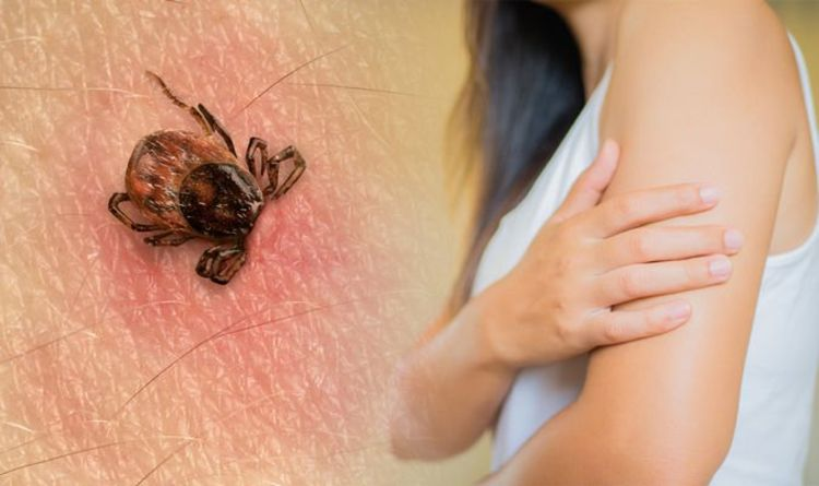 Lyme disease symptoms: Three parts of your body you should always check for tick bites
