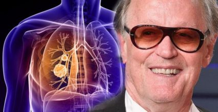 Peter Fonda health: Hollywood star has died from lung cancer – what are the signs?