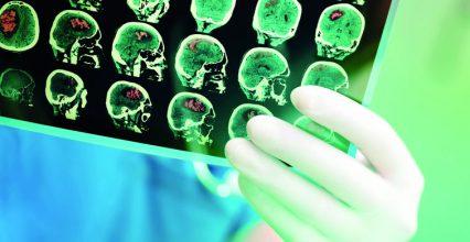 Reader Phone: Diagnosis Brain Tumor