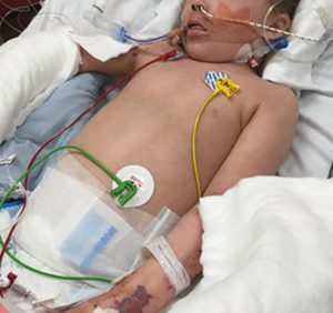 Girl's feet amputated after meningitis dismissed as 'tummy bug': report