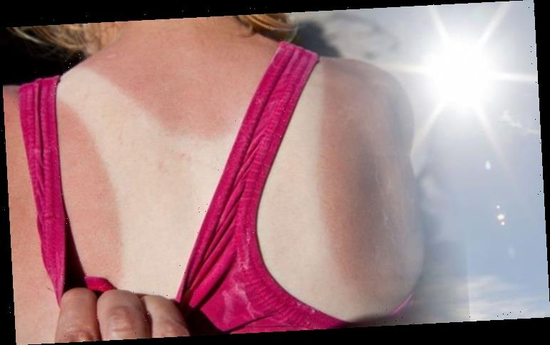 How to get rid of sunburn: Two simple steps to healing sunburned skin