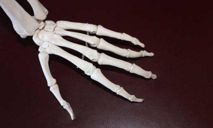 Reducing corticosteroid use in rheumatoid arthritis