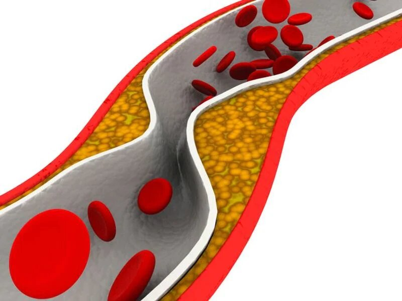 U.S. task force still advises against carotid artery stenosis screening