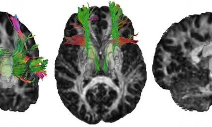Study explores how changes in healthy brain structure affect cognition