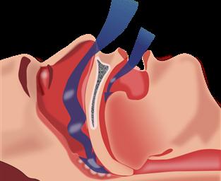 Obese, snoring mini pigs show how air flows through the throat during sleep apnea