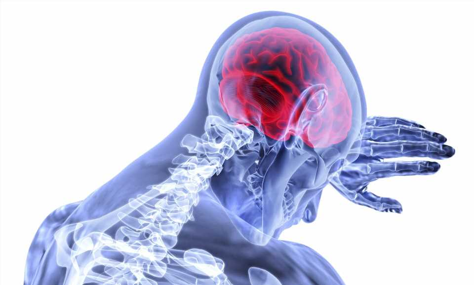 Research identifies genetic risk factor for stroke