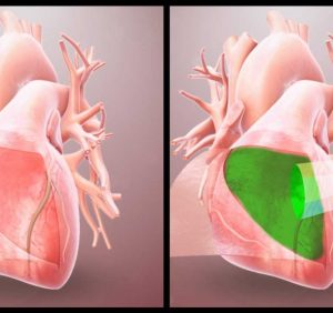 Bio-inspired hydrogel protects the heart from post-op adhesions