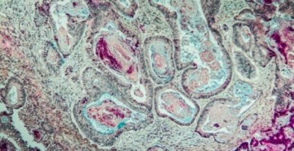 Combination immunotherapy for advanced bowel cancer approved for NHS in England