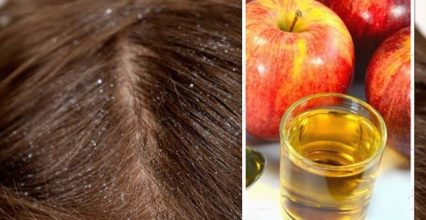 Apple Cider Vinegar for hair: The foolproof hack to get rid of dandruff for less than £1