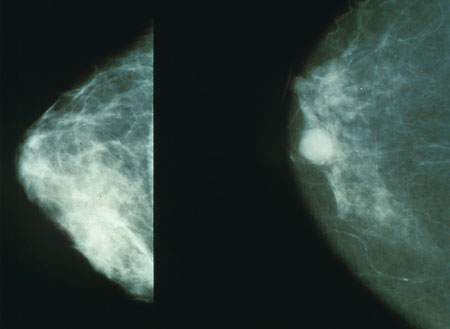 Chronic stress may impact treatment completion and survival outcomes in patients with breast cancer
