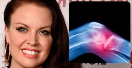 Strictly star Joanne Clifton sheds light on her chronic condition – symptoms to spot